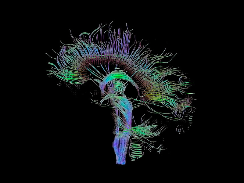 """DTI-sagittal-fibers"" Photo by Thomas Schultz[CC BY-SA 3.0]"